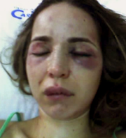 fotografia tomada de violencia sobre la mujer es.wikipedia.org